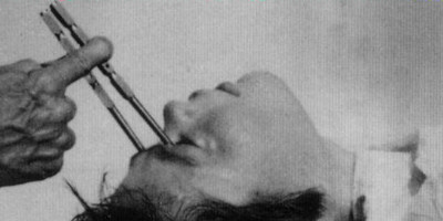 Lobotomy from 19th century